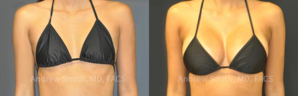 500cc Breast Implants